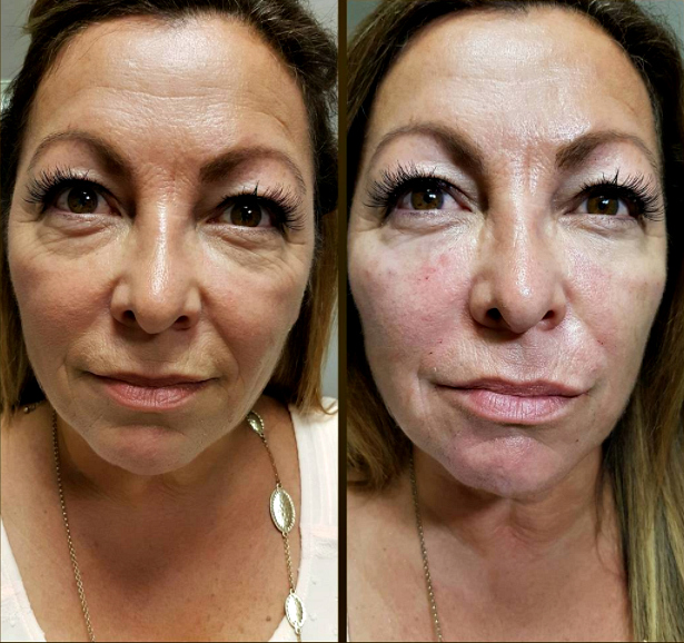 Is the Vampire Facelift effective