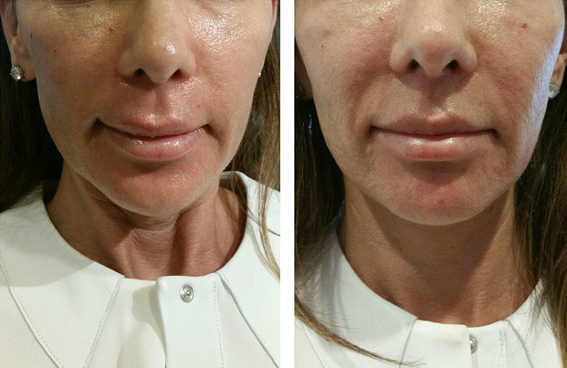 Vampire Facelift Before and After results